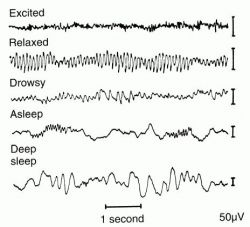 Example of Results from an Electroencephalogram